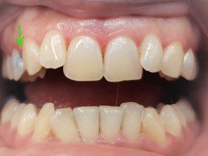 Esthetische En Cosmetische Tandheelkunde Amersfoort Liendert